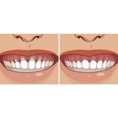 画像2: BIO歯茎マッサージ クリーム・鎮静化&浄化 75ml Ballot Flurin / バロフリュラン