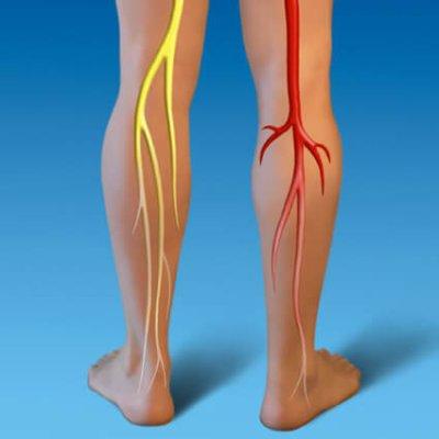 画像4: BIOレモン・ジェモレメディ・血流を改善、静脈りゅうのサポートに 50ml (単体植物) Herbalgem /ハーバルジェム
