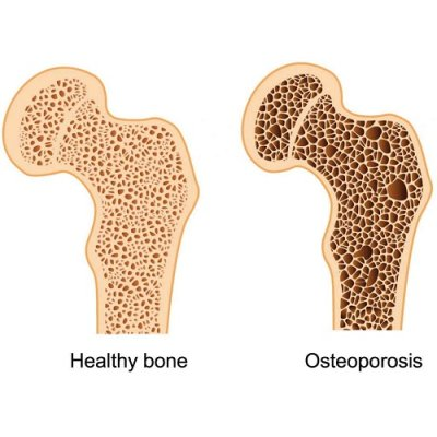 画像3: カルシヴィタル K2&D3 サプリ・骨粗しょう症予防に 30粒入  Be Life / ビーライフ